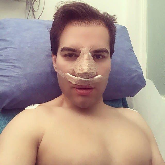 Celebrity lip enhancements gone wrong