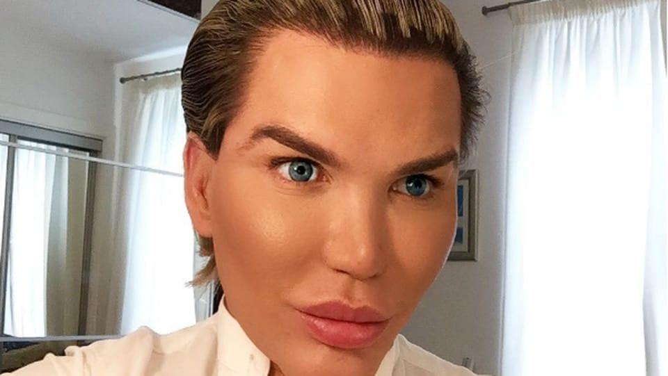 Non celebrity bad plastic surgery
